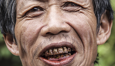 Mangyan man with betel nut stained teeth