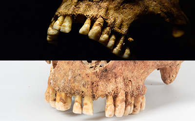 Image of two sets of Viking teeth that are horizontally filed