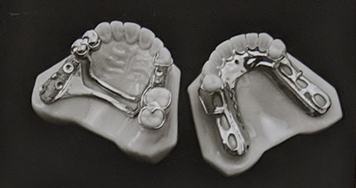 Image of two partial dentures