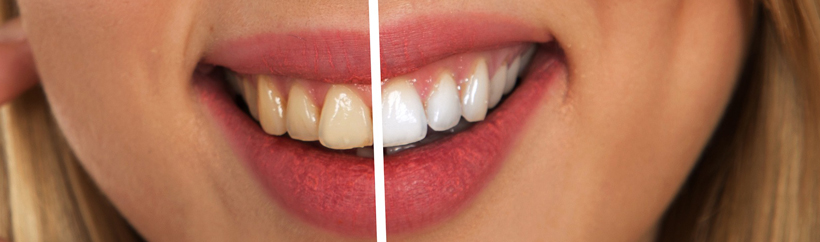 Image of yellow to white teeth