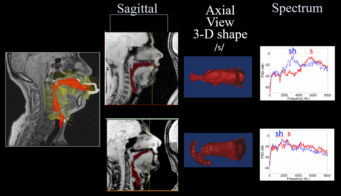 A collection of images illustrating sagittal, axial, and spectrum views of someone vocalizing the letter S